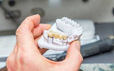 Model of dental crown supported fixed bridge