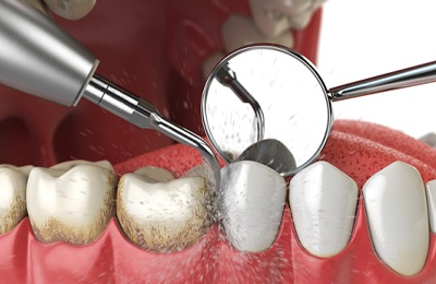 Scaling and root planing procedure to treat gum disease