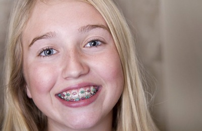 A young girl with metal braces.